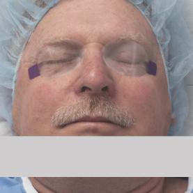 Eyegard patient eye protection